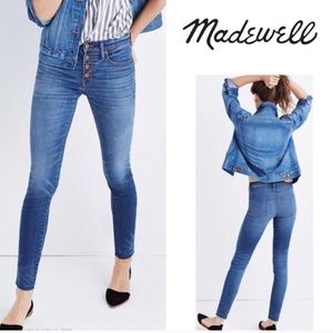 """Madewell 9"""" High Rise Button Fly Skinny Jeans"""